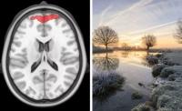 Учёные впервые записали ностальгическую реакцию в мозге с помощью МРТ-сканирования