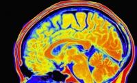 Впервые тесты ДНК способны предсказать интеллект