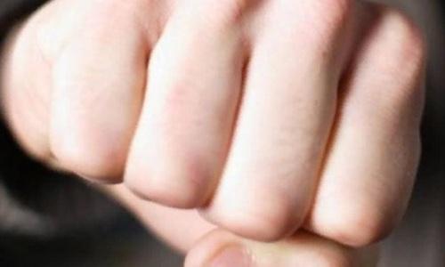 """""""Защитил честь мамы"""": в Симферополе 15-летний парень сломал челюсть сверстнику"""
