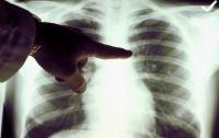 Ялта в лидерах по заболеваемости внебольничными пневмониями