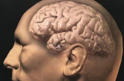 Найден белок, предотвращающий старение мозга