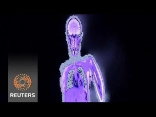 Французы создали электронное зеркало-рентген