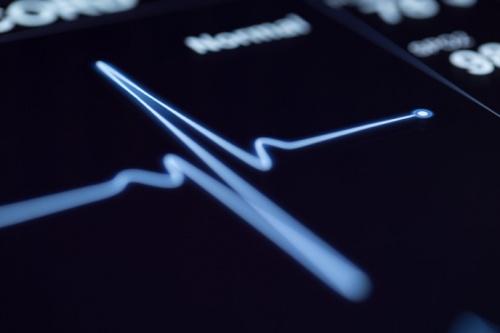 Искусственный интеллект способен предсказать вероятность острого сердечного приступа точнее врача